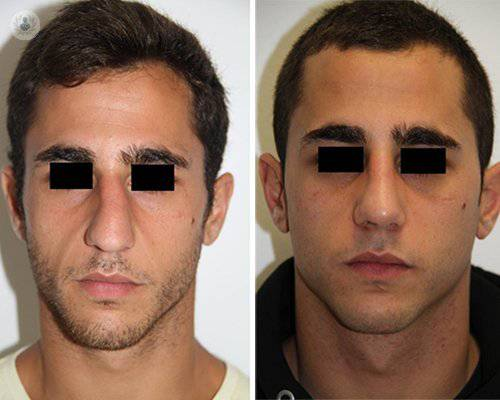 septorhinoplasty-before-after
