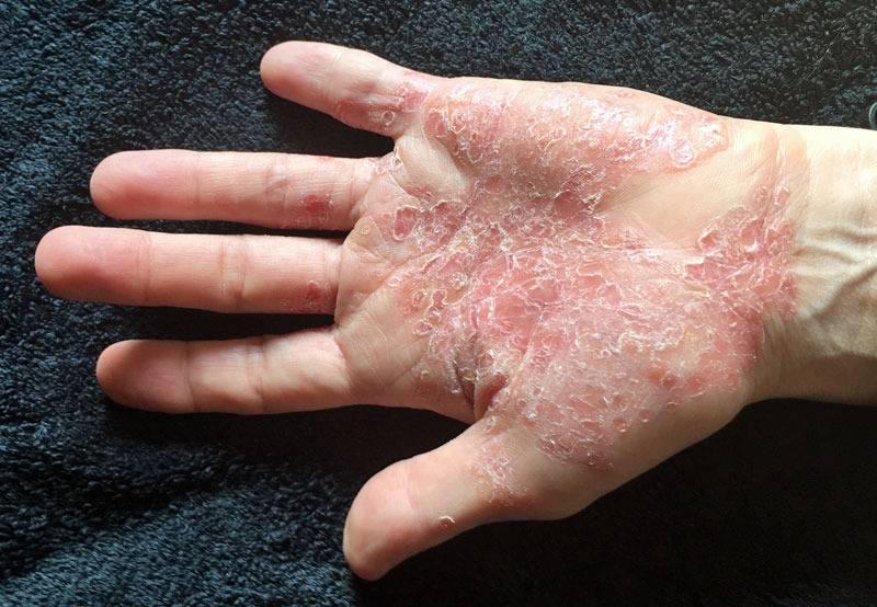 facts-about-psoriasis صورة المقال