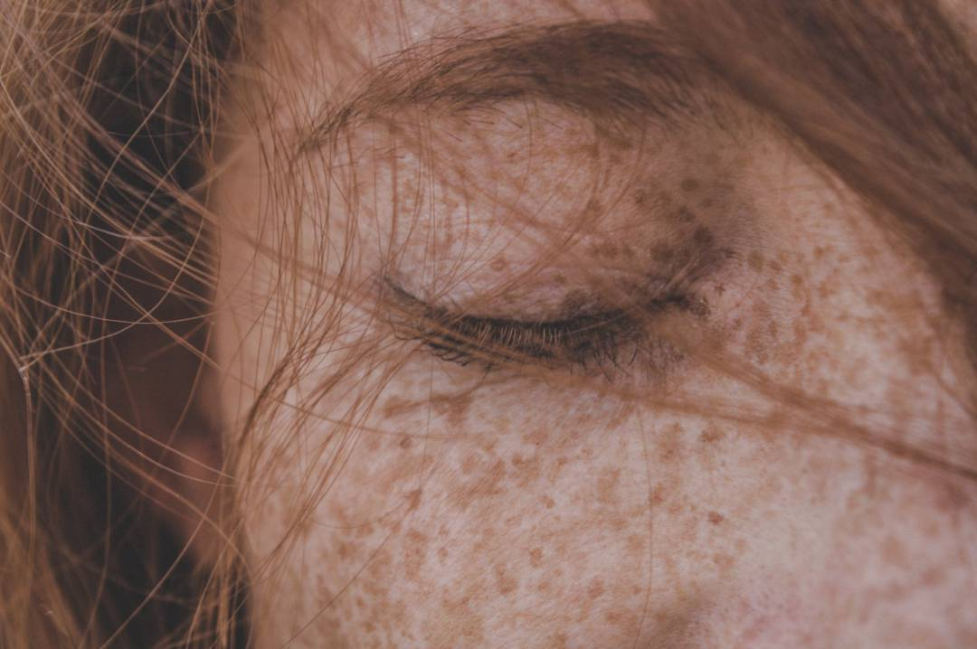 skin-pigmentation-causes-methods-of-prevention-and-treatment صورة المقال