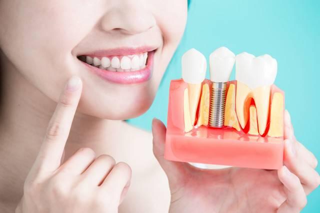 dental-implant صورة المقال
